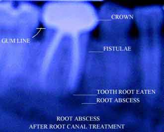 X-ray of tooth abscess following root canal treatment and crown